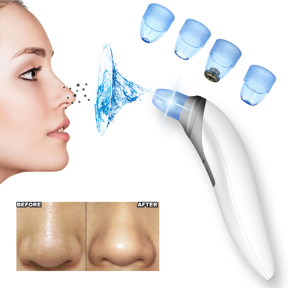 Face Nose Vacuum Blackhead Extractor Pores Cleaning Black Dot Comedo Extractor Point Noir Aspiration Acne Suction Skin Tool face nose vacuum blackhead extractor pores cleaning black dot comedo extractor point noir aspiration acne suction skin tool