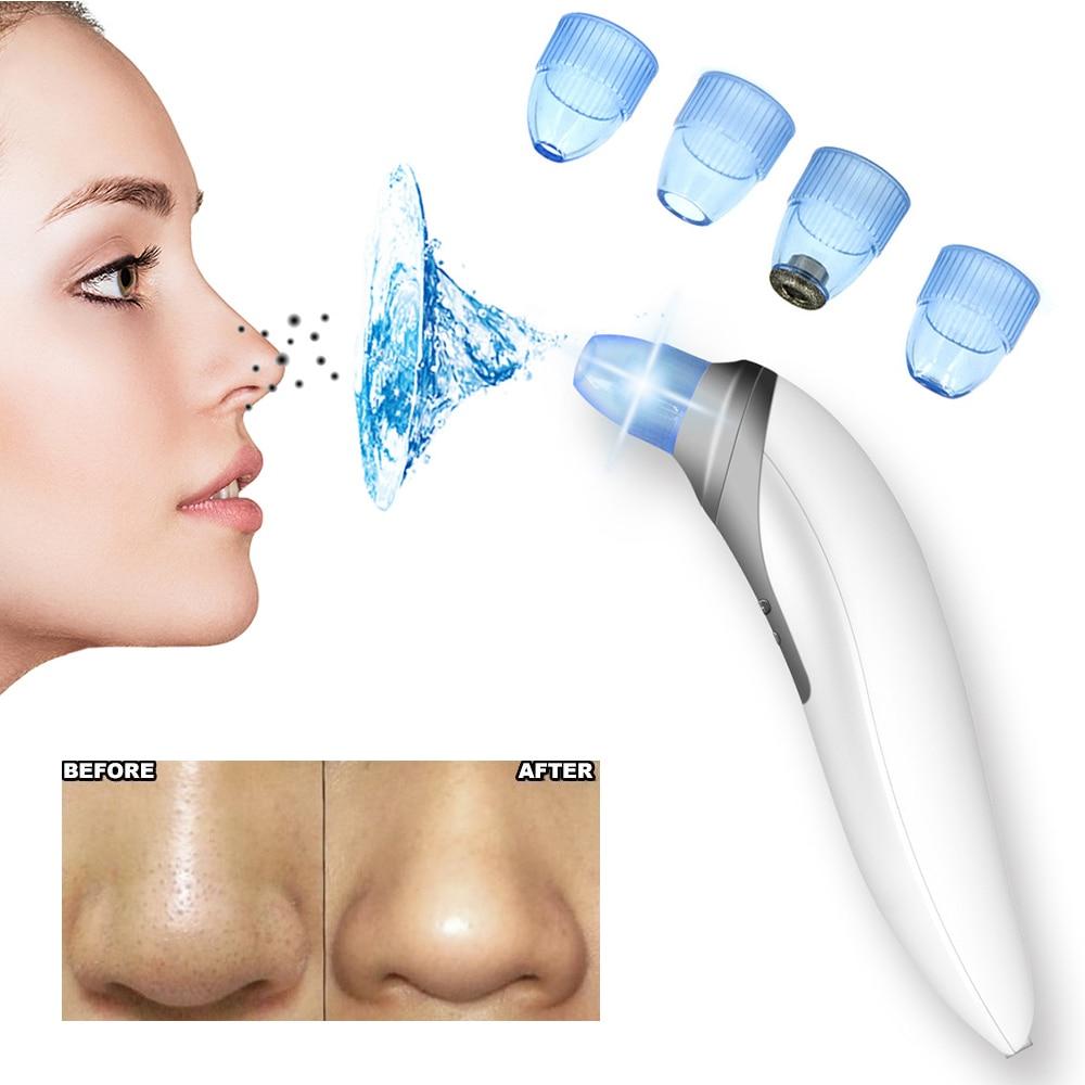 Face Nose Vacuum Blackhead Extractor Pores Cleaning Black Dot Comedo Tweezer Acne Clip 7pcs Tool Vacum Comedone Remover Needle Set Spots Blackheads