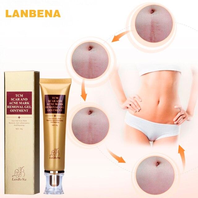 LANBENA Acne Scar Removal Cream Skin Repair Face Cream Acne Spots Acne Treatment Blackhead Whitening Cream Stretch Marks 30ml 1