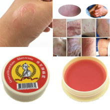Profesprofessional Cure Psoriasis Ointment Original From Thailand Native Medicine Ingredient Security skin cream D162