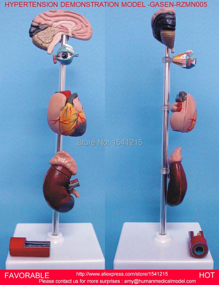 HUMAN ORGAN WITH BRAIN HEART KIDNEY MODEL,ANTOMY MEDICAL ORGANS MODEL,HYPERTENSION DEMONSTRATION MODEL -GASEN-RZMN005HUMAN ORGAN WITH BRAIN HEART KIDNEY MODEL,ANTOMY MEDICAL ORGANS MODEL,HYPERTENSION DEMONSTRATION MODEL -GASEN-RZMN005