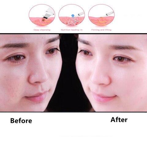 2019 Ultrasonic Skin Scrubber Deep Face Cleaning Machine Blackhead Remover Peeling Shovel Ultrasonic Facial Pore Cleaner Islamabad