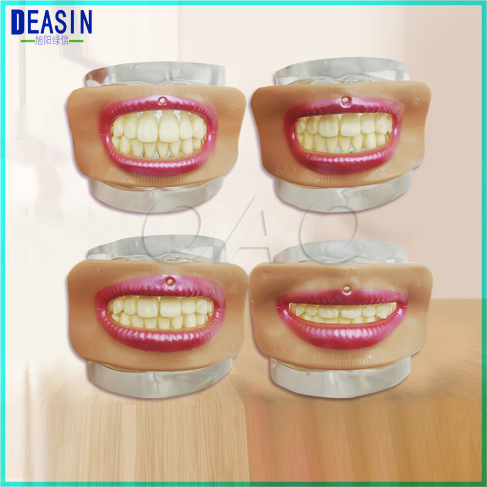 High-quality Dental Lab Denture Laboratory Mouth Measuring Lip Measurement Tool Aesthetics Parts  4 Pcs Different Shape