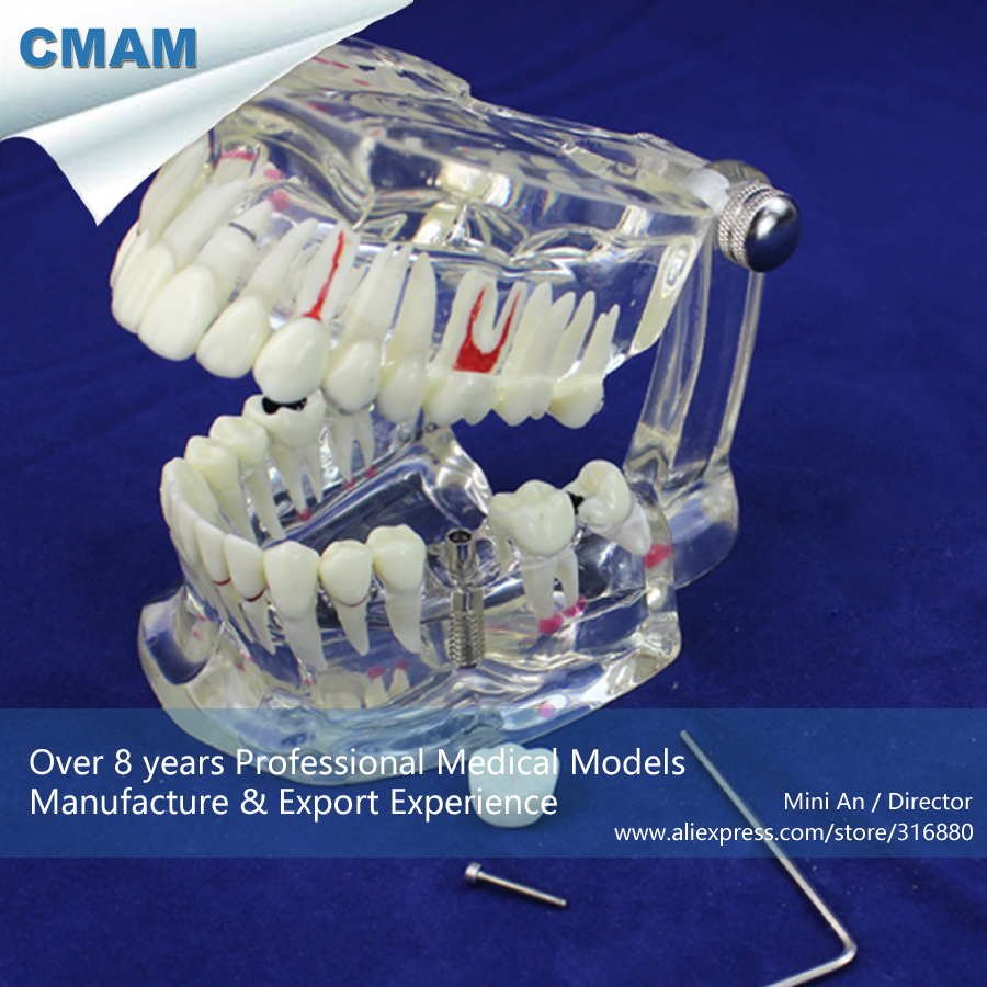 12567 CMAM-DENTAL08 Life Size Transparent Dental Model with Implant Tooth, Medical Science Educational Anatomical Models transparent dental orthodontic mallocclusion model with brackets archwire buccal tube tooth extraction for patient communication
