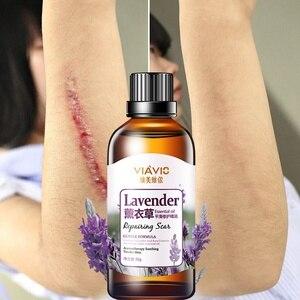 30g Lavender Scar Repair Essen