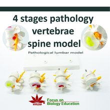 Medical teaching supplies Anatomy biological 4 stages pathology vertebrae spine model
