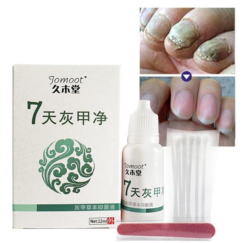 Anti Fungal Maximum Strength Herbal Foot Fungi Nail Treatment Toenail Fungus Fungus Removal Infection Feet Care 7 Days Repair