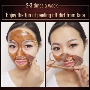 Image 5 - MEIKING פנים טיפול יניקה הבהרת מסכת פנים מסכת אקנה טיפול האף חטט אקנה טיפולי לקלף מסכת לחות