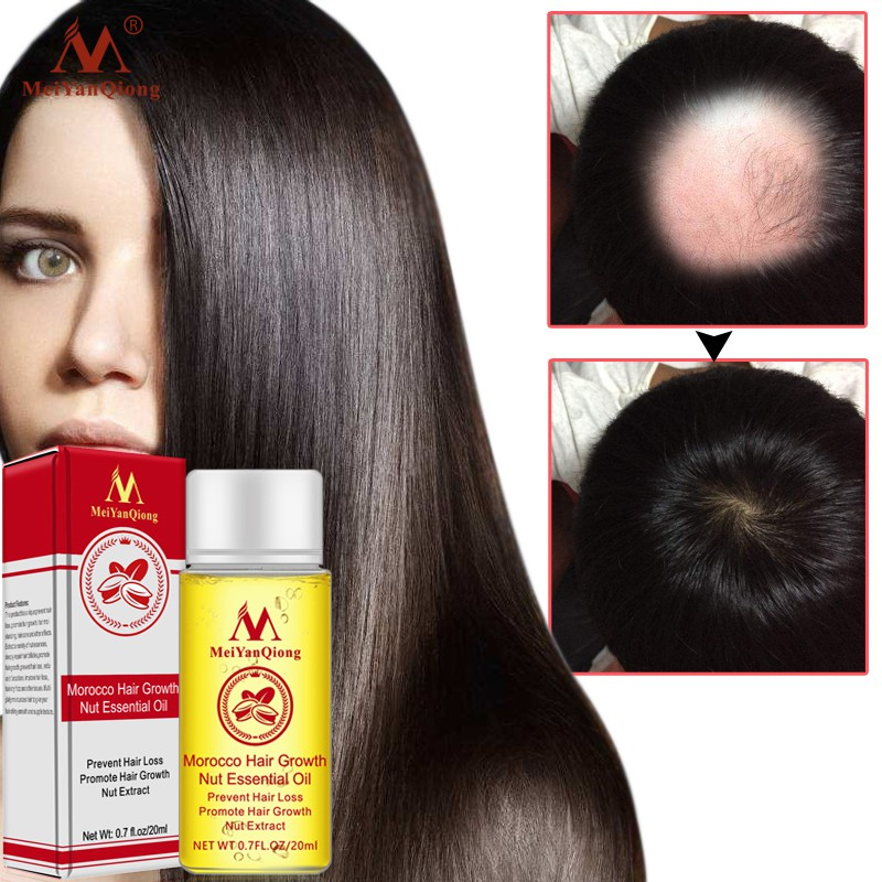20ml Moroccan Hair Growth Nut Essential Oils Hair Faster Grow Oil Stop Hair Loss Products
