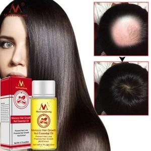 20ml Moroccan Hair Growth Nut Essential