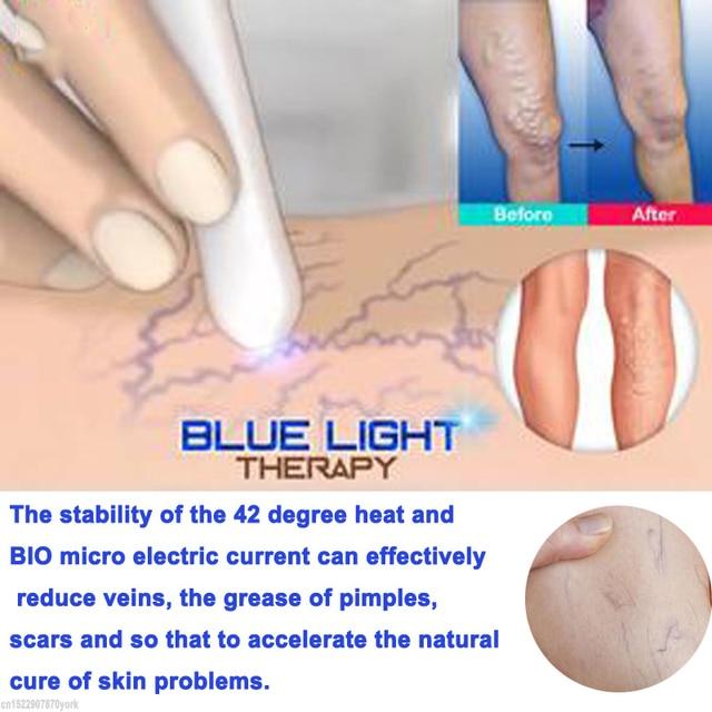 Caneta laser para terapia de luz azul, tratamento de veias varicosas em creme, remoção de rugas, 1 peça apenas 7 dias 2