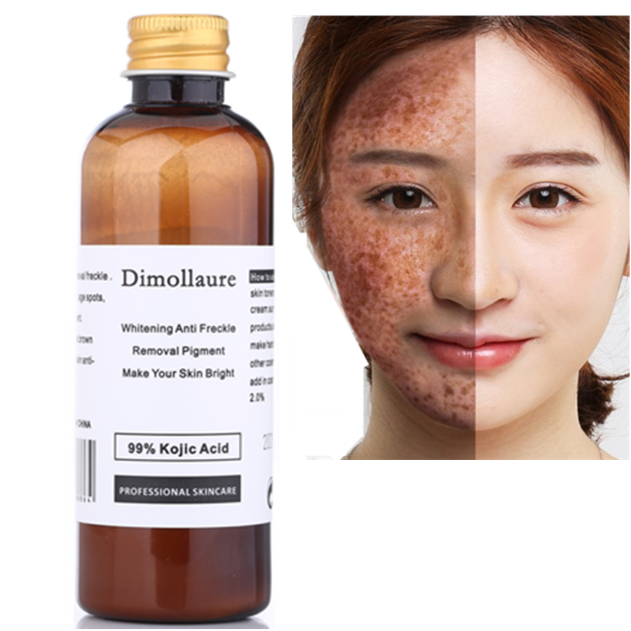 Dimollaure 50g pure 99% Kojic Acid face care whitening cream remove Freckle melasma Acne Spots pigment sunburn Melanin цена 2017