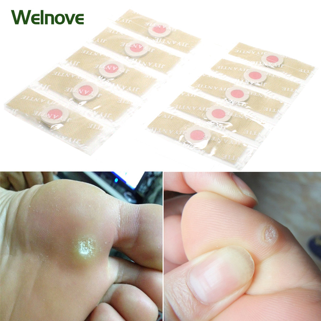 18Pcs Foot Care Medical Plaster Foot Corn Removal Calluses Plantar Warts Thorn Plaster Health Care For Relieving Pain D1361