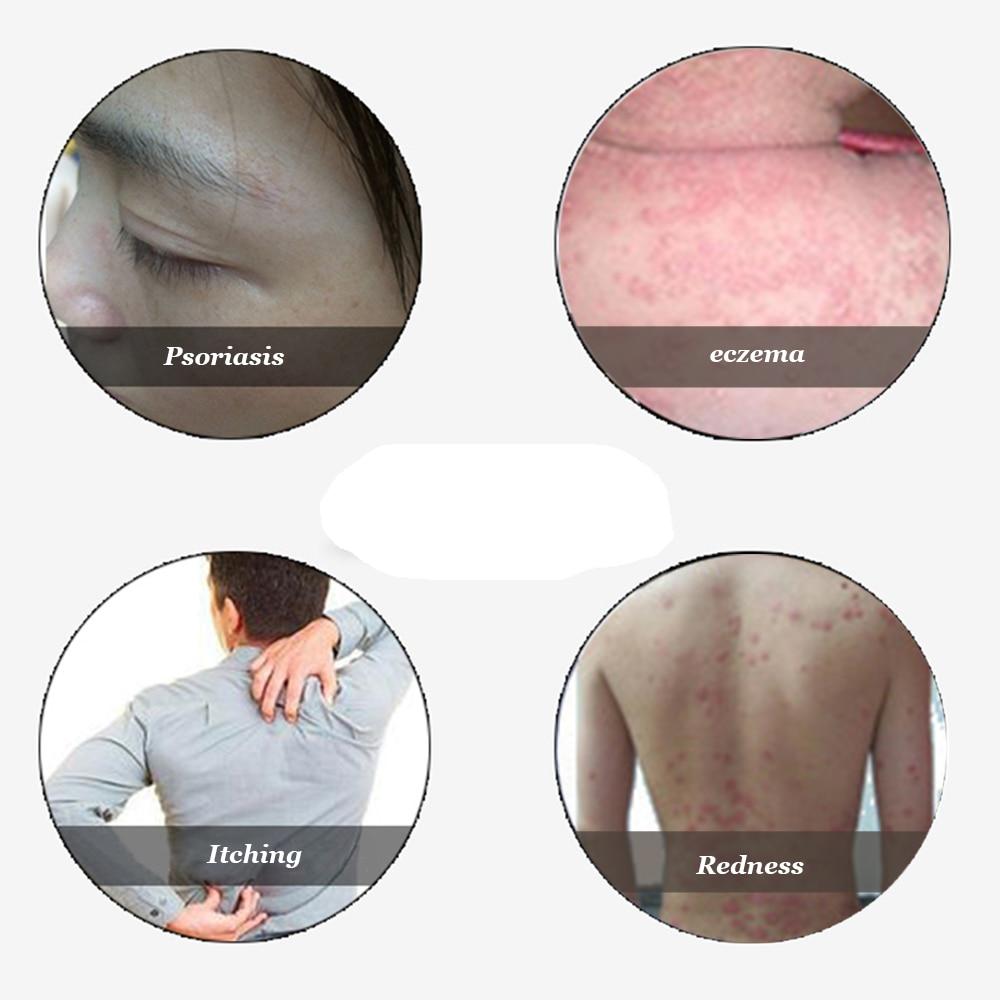 Psoriasis Dermatitis Eczema Treatment Anti Bacterial Skin Fungus Herbal Cream Ointment Miao