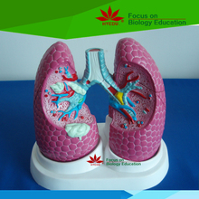 Medical teaching supplies Anatomy biological Bronchus and lung pathology model