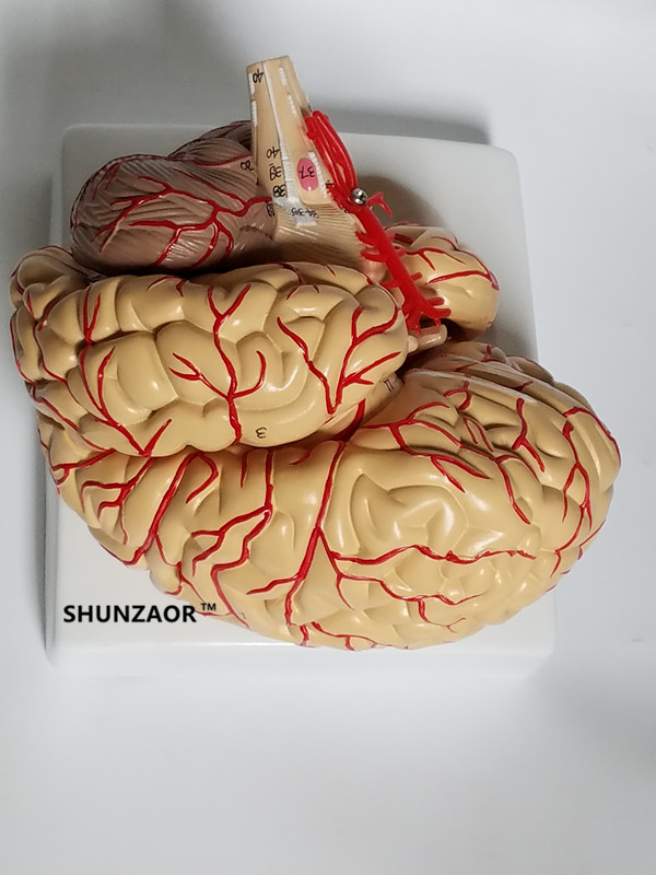 The Anatomical Brain Model Arteries 9parts 42number For Learning