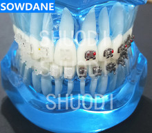 Transparent Dental Orthodontic Mallocclusion Model with Ceramic and Metal Brackets for Patient Communication
