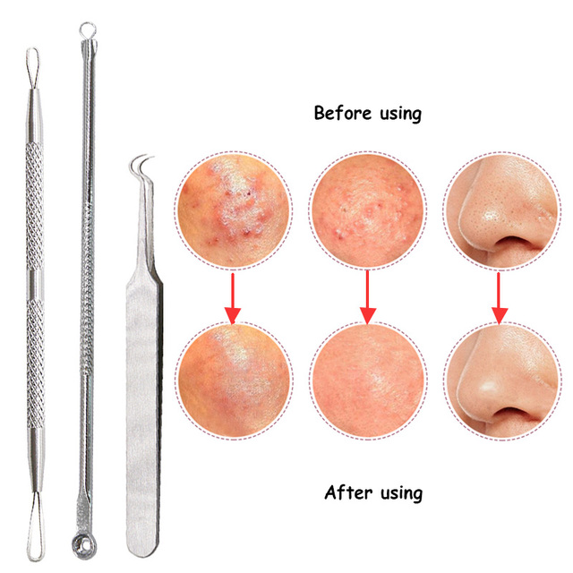 1 Set Double-Ended Stainless Steel Blackhead Remover Needle Acne Comedone Pimple Blemish Extractor Deep Cleansing Face Care Tool Skin Care