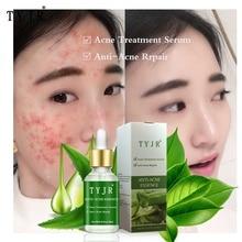 Aloe Vera Face Care Serum Acne Scar Spots Removal Skin Care Whitening Remove Scars Acne Repair Face Acne Treatment недорого