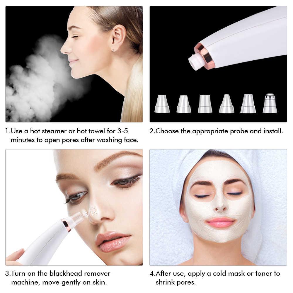 真空毛穴クリーナー鼻 tzone にきび除去電気クレンザーフェイスディープ細孔にきびにきびの除去真空吸引美容ツール