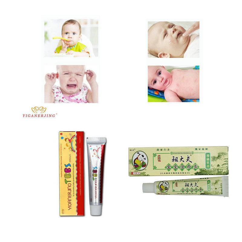 With Box Zudaifu Baby Psoriasis Cream Dermatitis Eczematoid Eczema Treatment  Baby Eczema Cream Nappy Cream Skin Cream For Kids