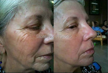 2pcs 2X10ml Boto x Instantly Ageless Face Lift Firming Skin Care Product Concentrate Powerful Anti wrinkle