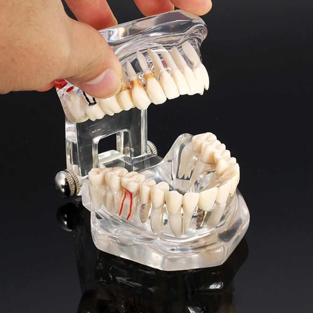 1 Người Lớn Nha Khoa Nhựa Phục Hồi Mẫu Răng Nghiên Cứu Mô Hình Nha Sĩ Dụng Cụ Nha Khoa Phòng Thí Nghiệm Trong Suốt Mẫu