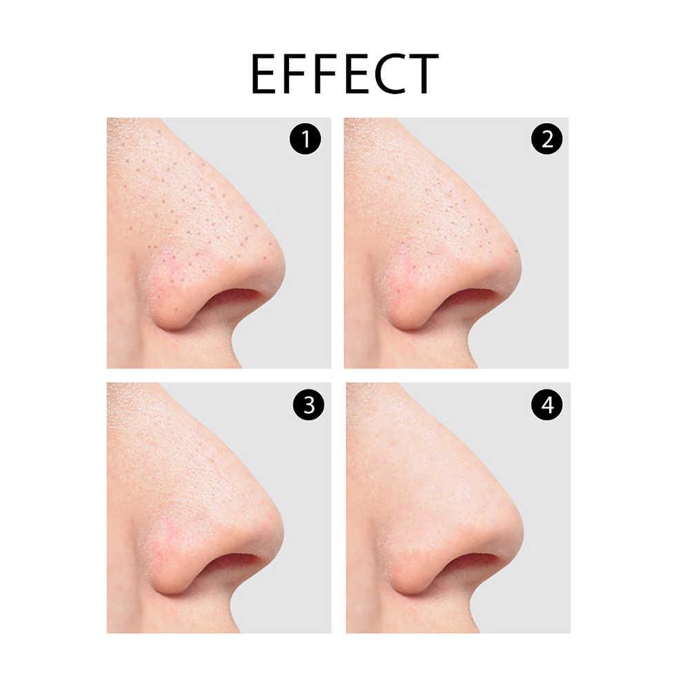 Gezicht Pore Cleaner Acne Vacuüm Zuig Remover Puistje Remover Tool voor Acne Zwarte Stippen Stofzuiger voor Gezicht Reinigen