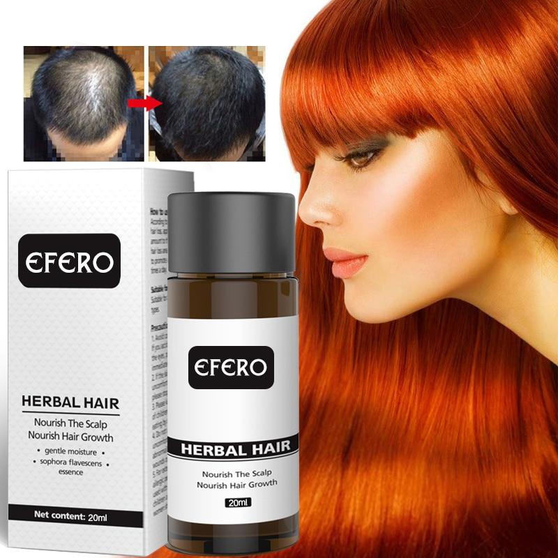 1 Pc Women Man Hair Growth Natural Ginger Essential Oil Hair Loss Products 20ml Hair Care Prevent Baldness Anti-Hair Loss TSLM2