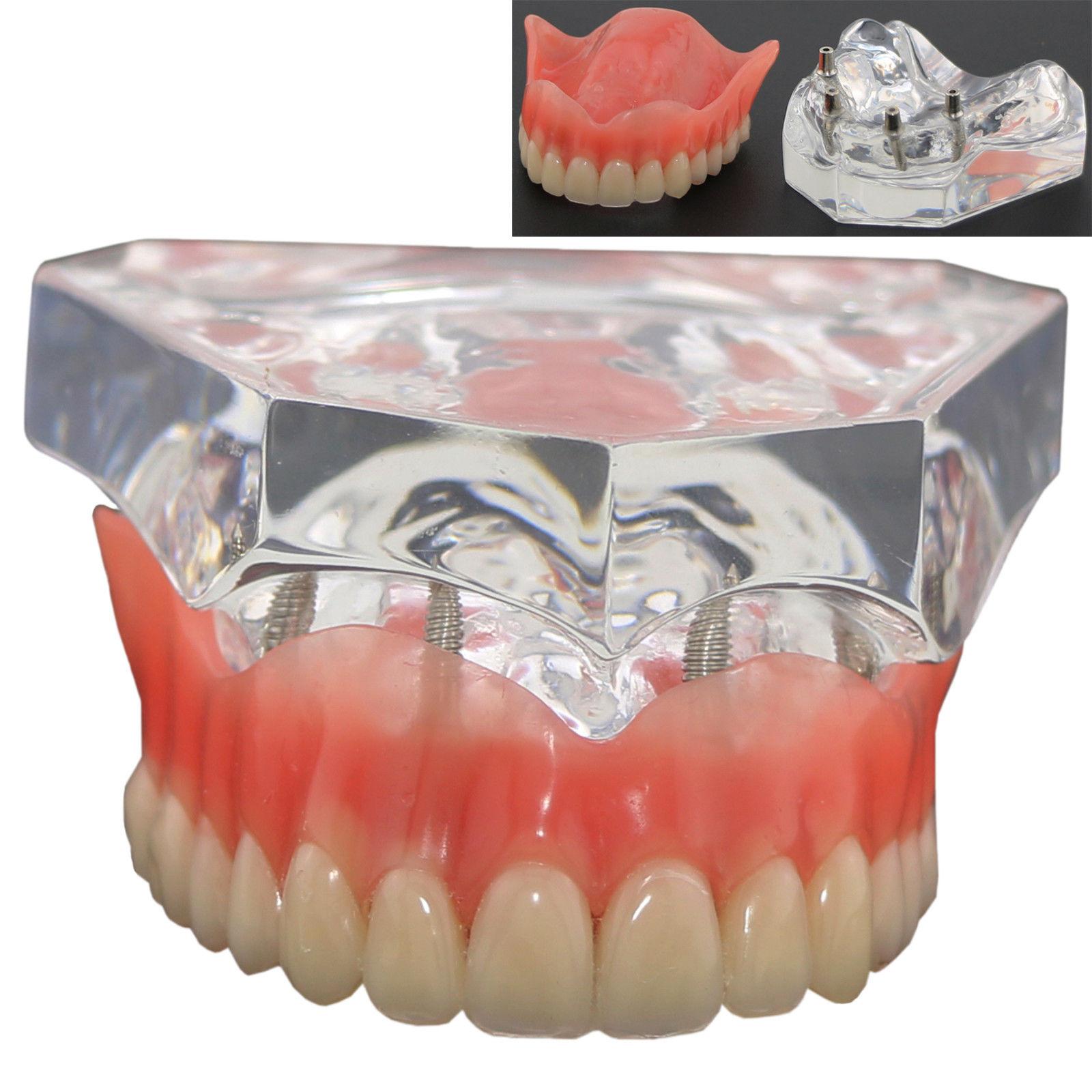 Dental Upper Teeth Model Overdenture Superior 4 Implants Demo Model 6001 02 teeth model blue dental orthodontics communication model with 4 types of brackets
