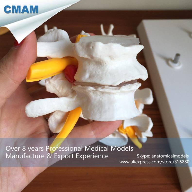 CMAM-VERTEBRA12P Promotion Economic Medical Gift Lumbar Vertebrae Osteoporosis 4-stage Anatomical Model Set economic methodology