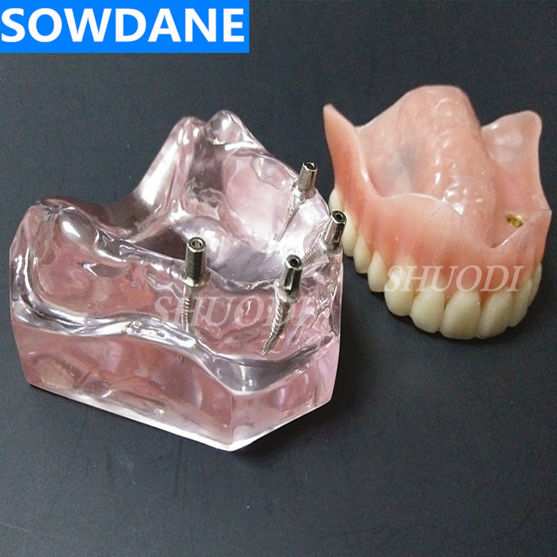 Dental Overdenture Upper Anterior Maxillary with 4 Implant Restoration Teeth Study Teach Model