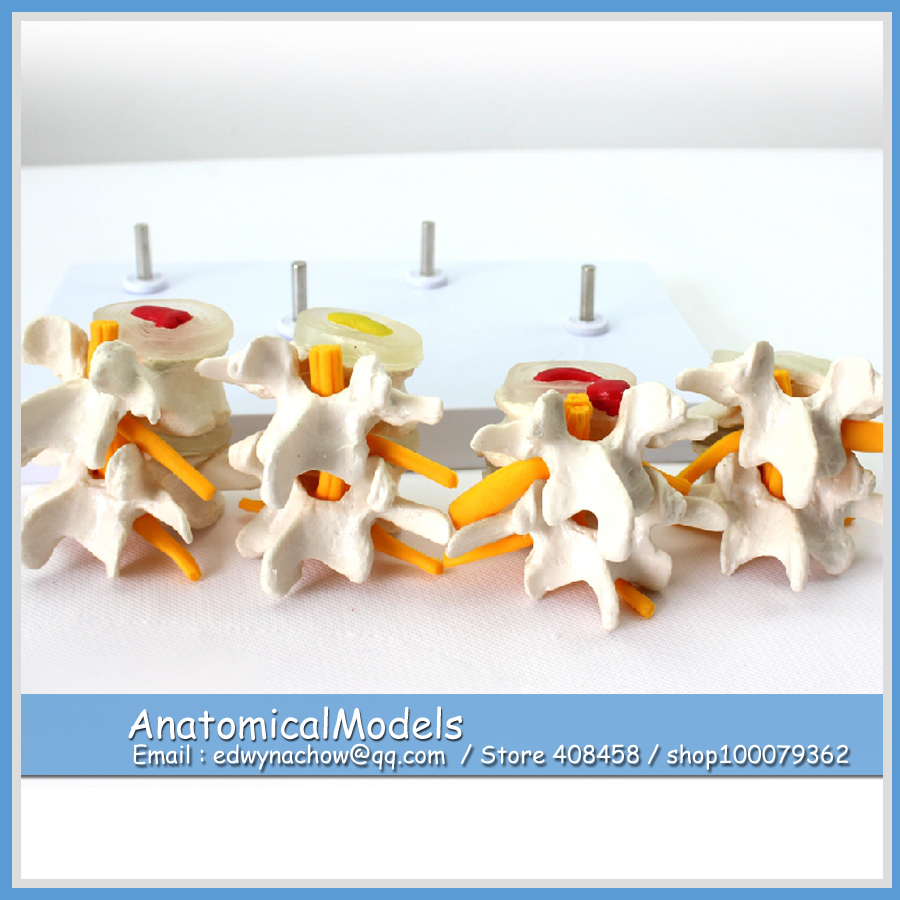12396 VERTEBRA12 Human Lumbar Vertebrae Degenerative Disc Disease Model, Medical Science Educational Teaching Anatomical Models