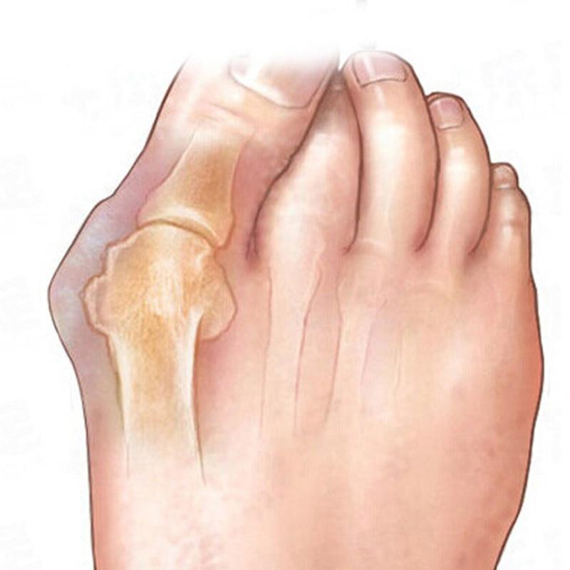 1Pair Alat za njegu stopala Thumb Night Koristi Pedikuru Dnevnog - Alat za njegu kože - Foto 2
