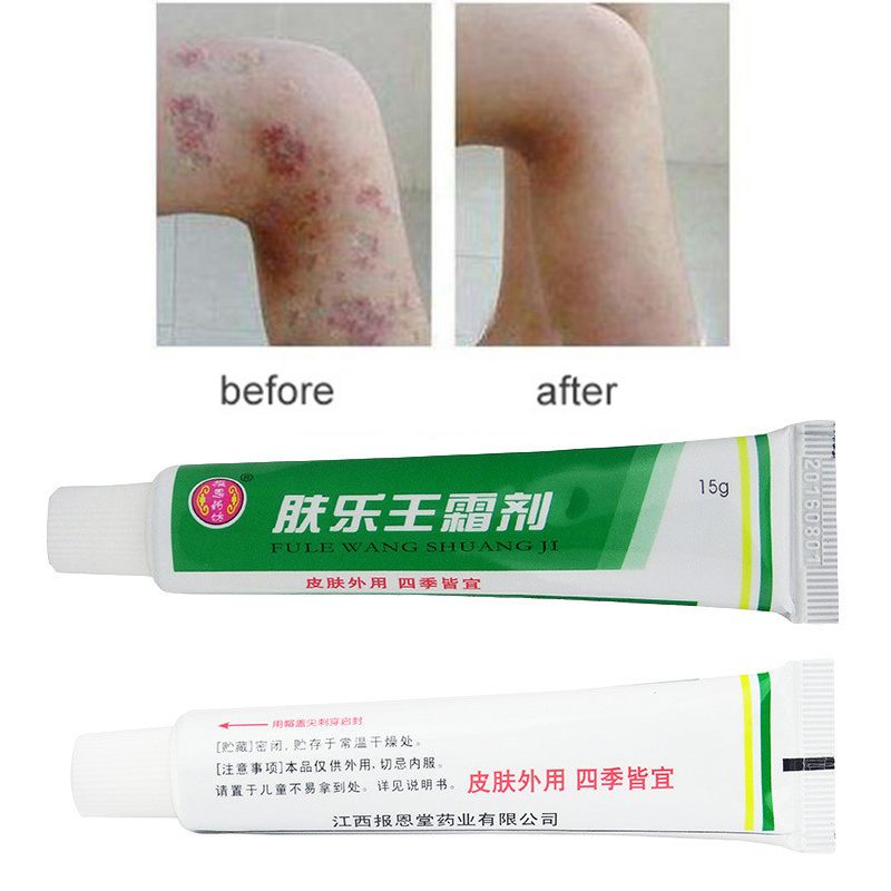 FULEWANG (NO BOX) 1PC Skin Psoriasis Cream Dermatitis Eczematoid Eczema Ointment Treatment Psoriasis Cream 15g