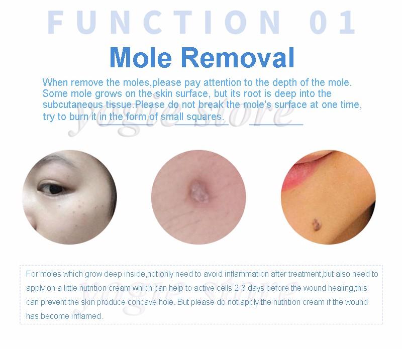mole-removal-machine-6