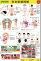 Rhinitis health therapy, rhinitis therapy flip chart, rhinitis cupping, rhinitis Scrapping therapies Wall Map charts