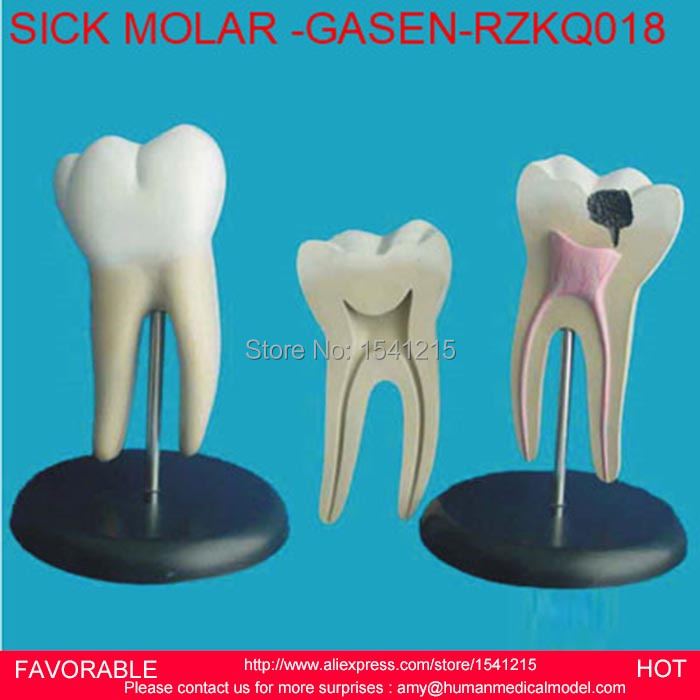 DENTAL MATERIALS TOOTH PATHOLOGY DISSECTION MODEL DECAYED TOOTH GINGIVAL DISSECTION ,SICK LARGE MOLAR -GASEN-RZKQ018 dental pathology model anatomical model teeth model dental caries periodontal disease demonstration model gasen den050