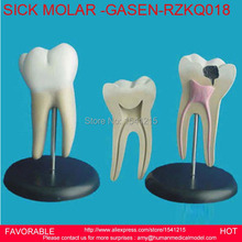DENTAL MATERIALS TOOTH PATHOLOGY DISSECTION MODEL DECAYED TOOTH GINGIVAL DISSECTION SICK LARGE MOLAR GASEN RZKQ018
