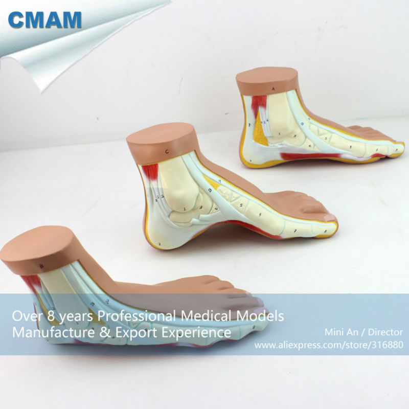 12034 CMAM-MUSCLE10 Medical Anatomy Human Foot Normal, Flat, Arched Foot Model, Flat And Arched Foot, Foot Anatomy Model mini human uterus assembly model assembled human anatomy model gift for children