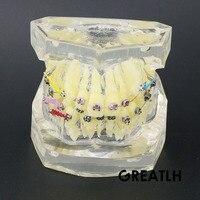 Dental Transparent Orthodontics Treatment Model Teeth Study/Teach Model #3005 02