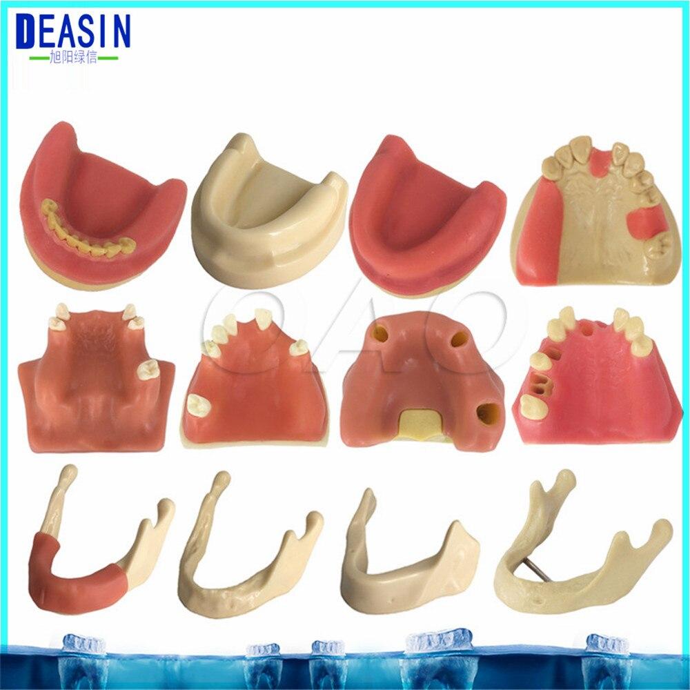 Modèle de pratique d'implant de haute qualité pour l'enseignement des dents dentaires dentiste modèle d'anatomie anatomique odontologia