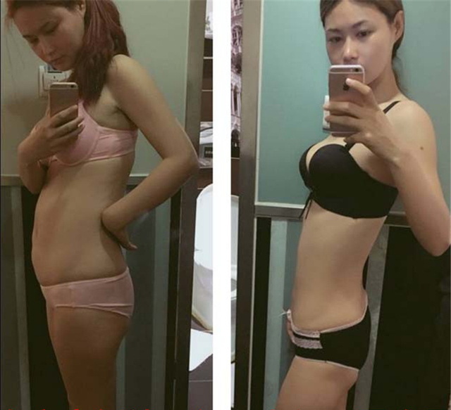 L-carnitine Tea Sticker Women Men Slimming Sticker Patch body Weight Loss Products High Quality Body Fat Loss Weight loss tea