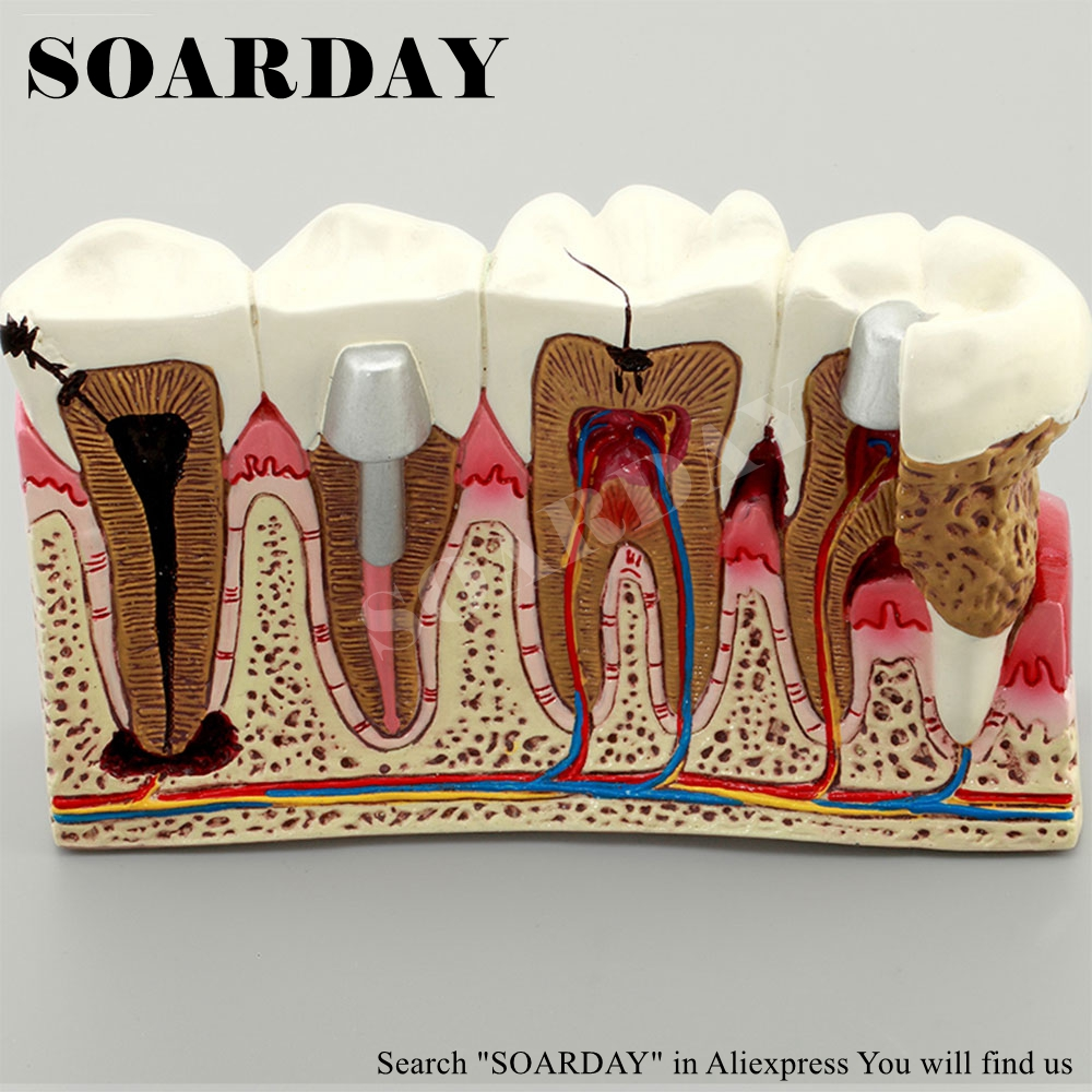 SOARDAY Dental Caries Anatomy Model Teaching Model Tooth Nerve Model soarday 1 piece 2 times dental pathological model display deep caries shallow caries teaching model