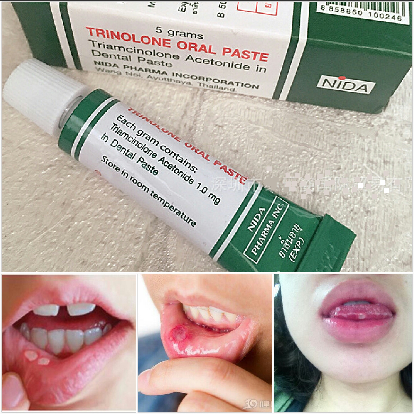 Dai Norren Thailand 100% Original  Herbal Oral Antibacterial Gel Natural Essence Ulcer Inflammation Oral Cream Tongue Pain