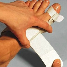 Hallux Velgus Treatment