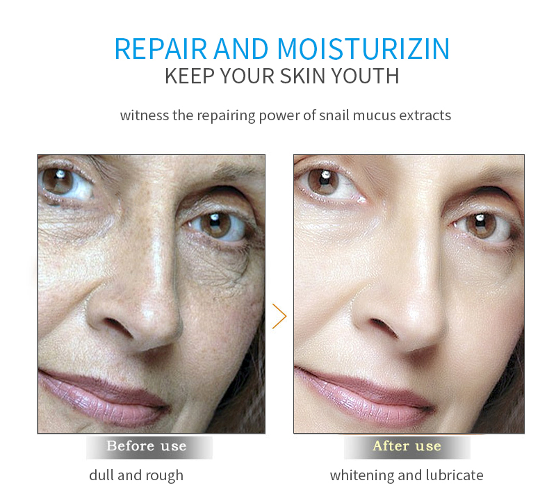 Hyaluronic Acid Face Creams Moisturizing Whitening Creams Hydrating Anti Aging Anti Wrinkle Cream Lift Firming Essence Skin Care in Facial Self Tanners Bronzers from Beauty Health