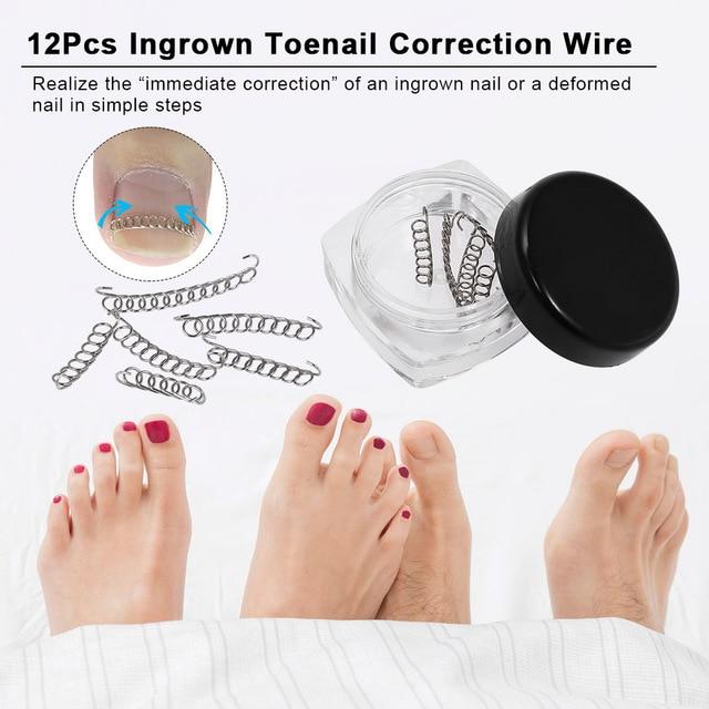 12Pcs Fixer Pedicure Recover Ingrown Toenail Correction Wire Fixer ...