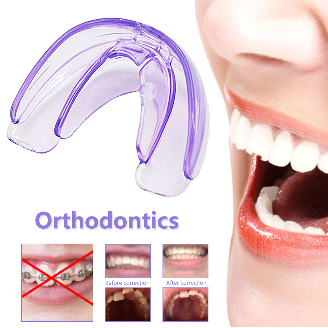 Correction Bracket Silicone Trainer Dental Fixture Oral Hygiene Orthodontics Transparent Orthodontic Care Teeth Braces