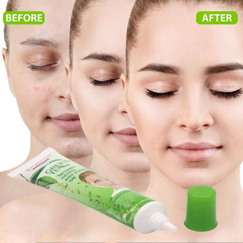 Hot Anti Acne Cream Oil Control Acne Treatment Blackhead Remova Shrink Pores Acne Scar Remove Face Care Whitening